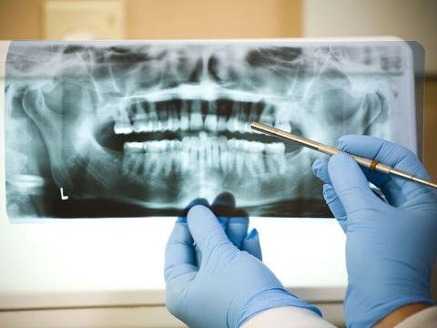 panoramica dentale e visita odontoiatrica