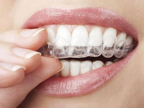 ortodonzia invisibile con apparecchio invisalign